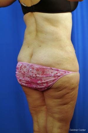 Liposuction: Patient 10 - After Image 3