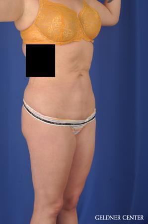 Liposuction: Patient 45 - After Image 2