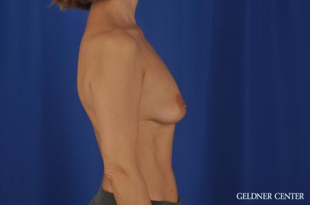 Breast Lift Lake Shore Dr, Chicago 6649 - Before Image 2