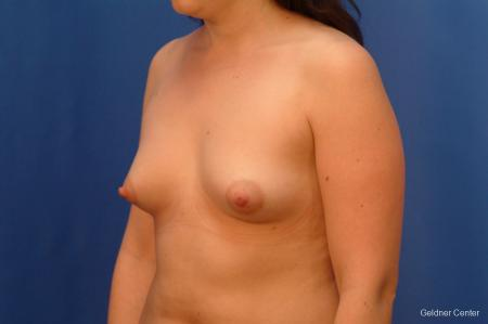 Chicago Breast Augmentation 2517 - Before and After Image 4