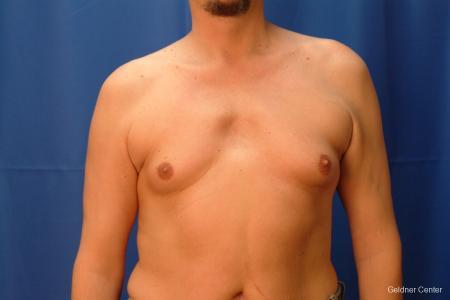 Gynecomastia: Patient 6 - Before Image 1