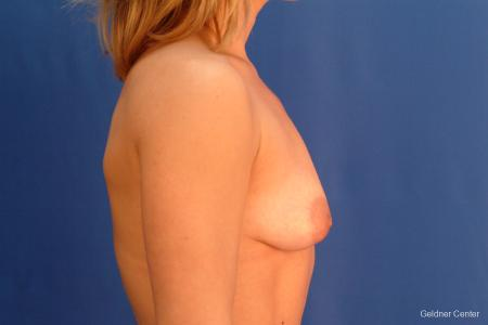 Breast Augmentation Lake Shore Dr, Chicago 2637 - Before Image 2