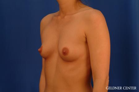 Breast Augmentation: Patient 181 - Before and After Image 4