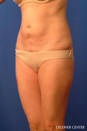 Tummy Tuck: Patient 36 - Before and After Image 4