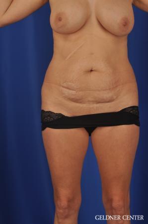 Liposuction: Patient 37 - Before 1
