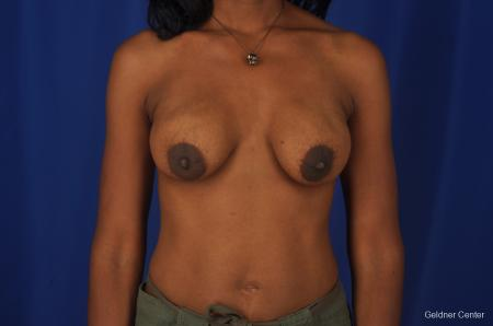 Breast Lift Streeterville, Chicago 2379 - Before Image