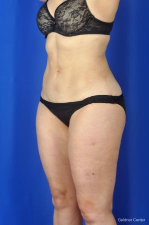 Liposuction: Patient 2 - After Image 5