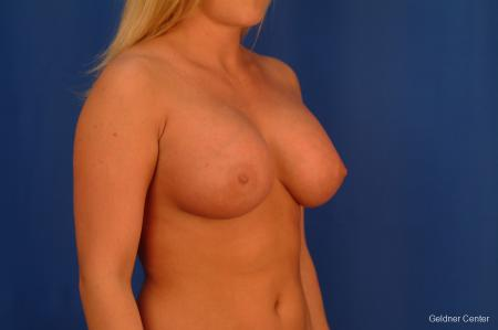 Chicago Breast Augmentation 2443 -  After Image 3