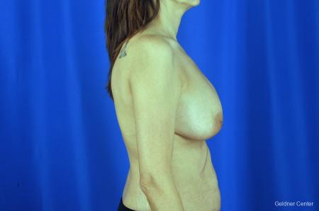 Breast Augmentation: Patient 5 - Before Image 3