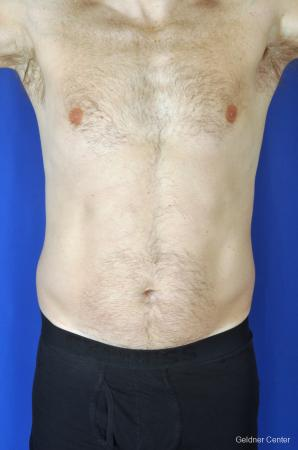 Liposuction-for-men: Patient 6 - Before Image