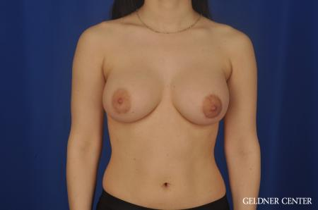 Complex Breast Augmentation Lake Shore Dr, Chicago 5474. -  After 1