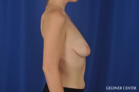 Breast Augmentation Streeterville, Chicago 5547 - Before Image 3