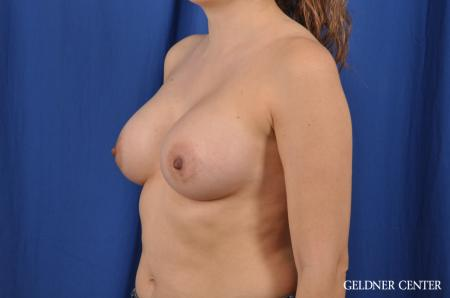 Breast Augmentation: Patient 144 - After Image 4