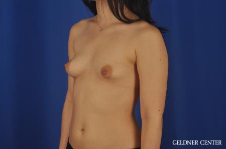 Chicago Breast Lift 5473 - Before and After Image 4