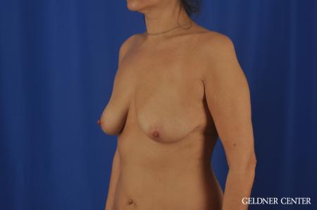 Chicago Breast Lift 11866 - Before and After Image 4