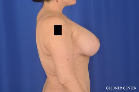 Breast Augmentation: Patient 161 - After 3