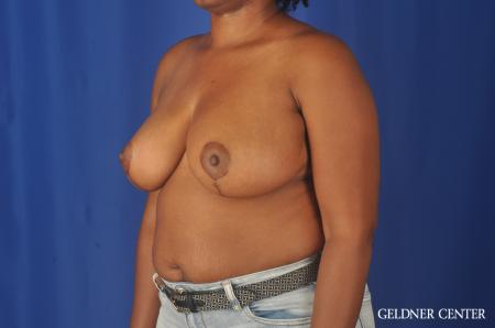 Breast Reduction: Patient 24 - After Image 4