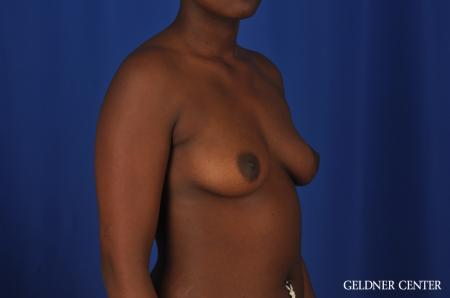 Breast Augmentation Hinsdale, Chicago 4001 - Before Image 3