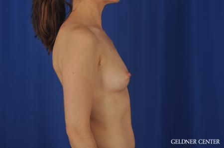 Breast Augmentation Hinsdale, Chicago 5579 - Before Image 3
