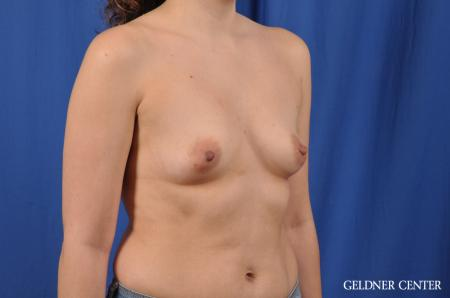 Breast Augmentation: Patient 144 - Before Image 3