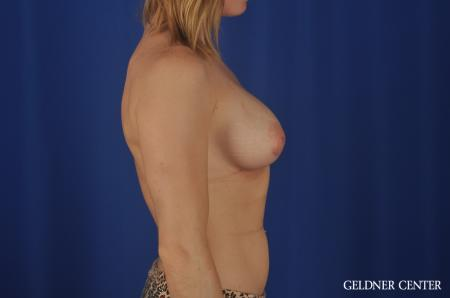 Chicago Breast Augmentation 5468 -  After Image 3