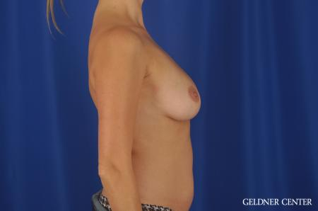 Chicago Breast Augmentation 8746 - Before Image 2