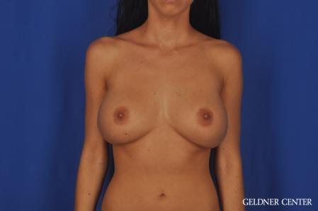 Breast Augmentation: Patient 162 - Before Image 1