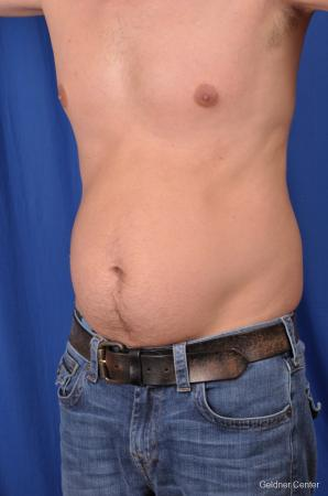 Liposuction For Men: Patient 5 - Before and After Image 5