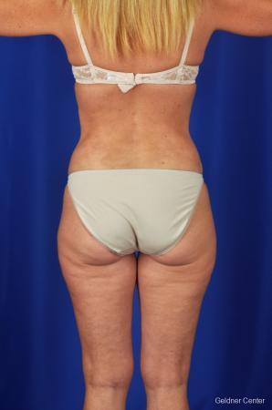 Liposuction: Patient 4 - After Image 4