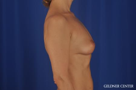 Breast Lift Lake Shore Dr, Chicago 6649 -  After Image 2