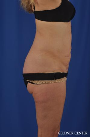 Chicago Abdominoplasty 11854 - Before Image 3
