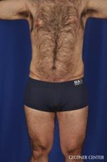 Liposuction-for-men: Patient 10 - After