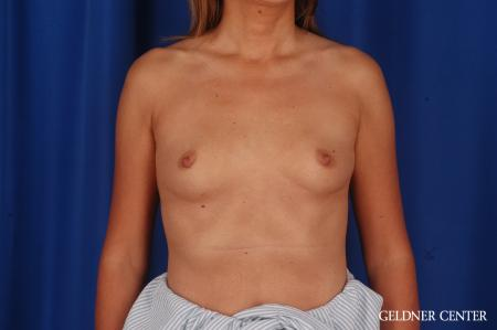 Breast Augmentation: Patient 173 - Before Image 1