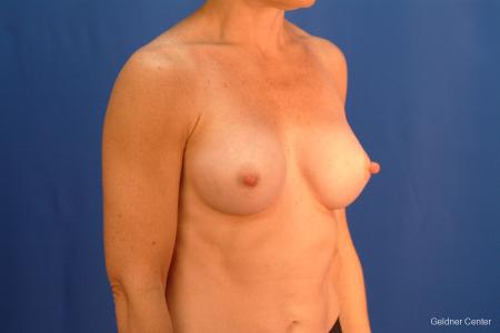Chicago Breast Augmentation 2635 -  After 3