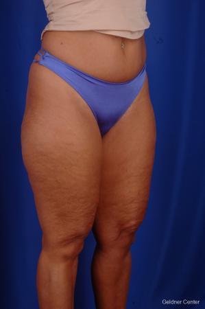 Liposuction: Patient 7 - Before Image 2