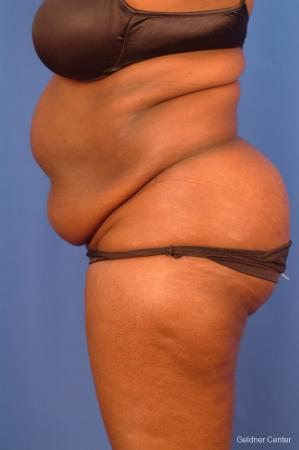 Vaser lipo patient 2540 before and after photos - Before Image 4