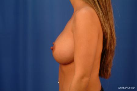 Chicago Breast Augmentation 2526 -  After Image 4
