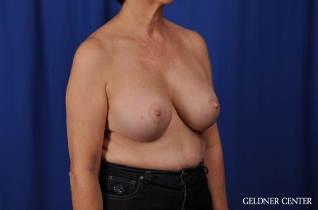 Chicago Breast Augmentation 4285 -  After Image 2