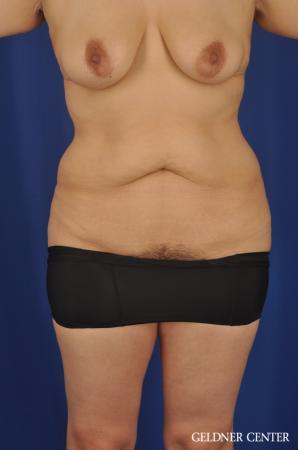 Lipoabdominoplasty: Patient 7 - Before Image