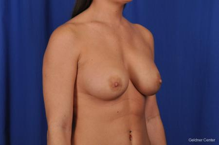 Breast Augmentation Streeterville, Chicago 2071 -  After Image 3