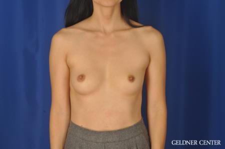 Breast Augmentation: Patient 176 - Before Image 1