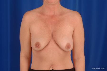 Breast Lift Lake Shore Dr, Chicago 2308 - Before Image