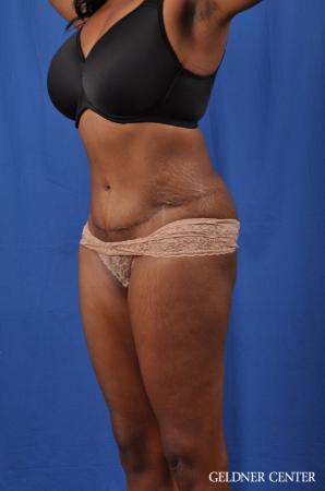Abdominoplasty: Patient 6 - After Image 4