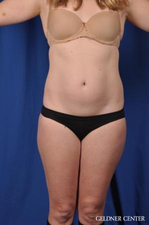 Liposuction: Patient 48 - Before 1