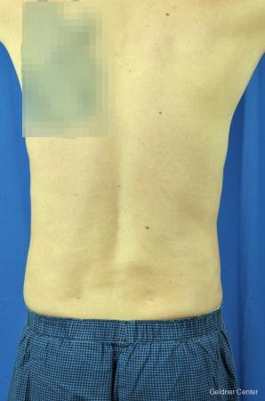Liposuction For Men: Patient 5 - After Image 4