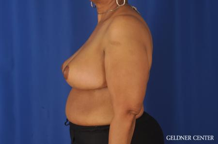 Breast Reduction: Patient 25 - After Image 5