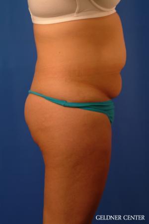 Liposuction: Patient 46 - Before Image 3