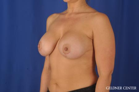 Breast Augmentation: Patient 80 - After Image 4
