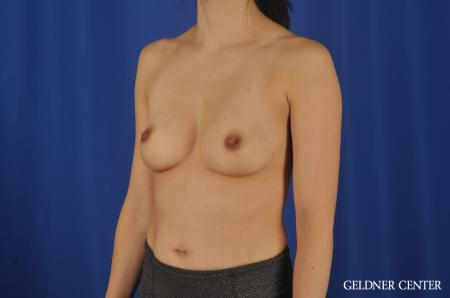 Chicago Breast Augmentation 8818 - Before and After Image 4