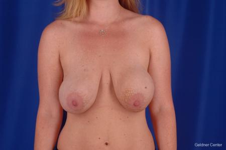 Chicago Breast Lift 2291 - Before Image 1